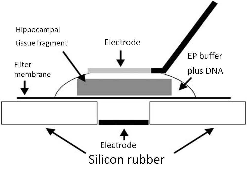 Schematic representation of an electroporation set-up
