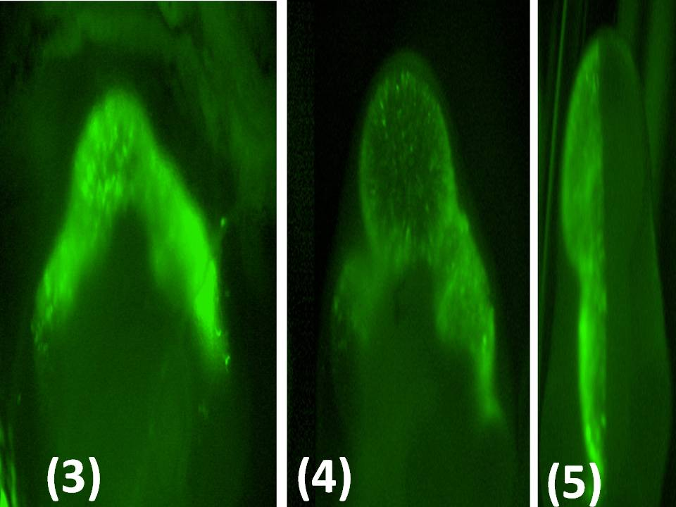 Monitoring transfection efficiency with the GFP expression vector