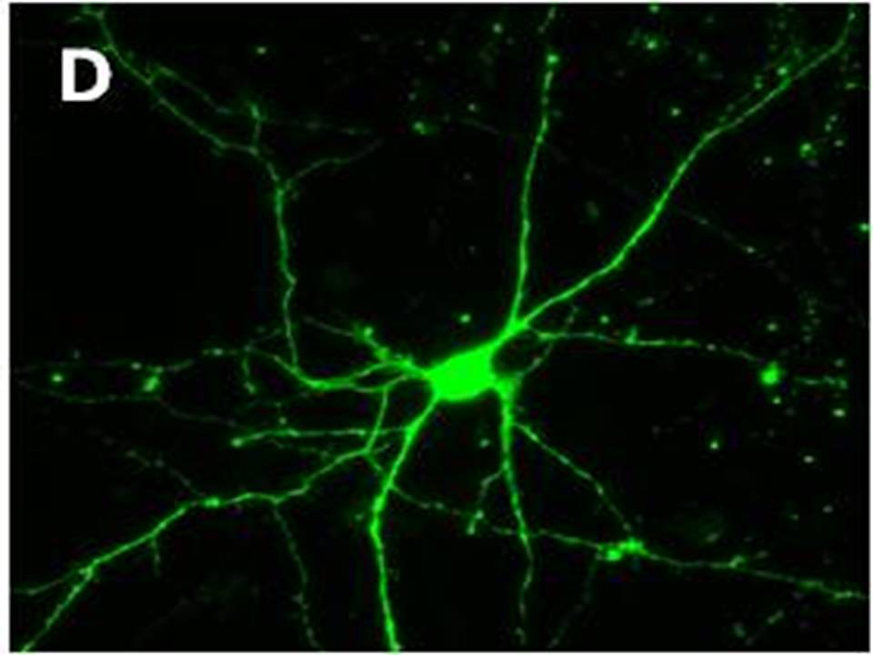 High magnification image of Figure C (x40). (Neurites are clearly visible).