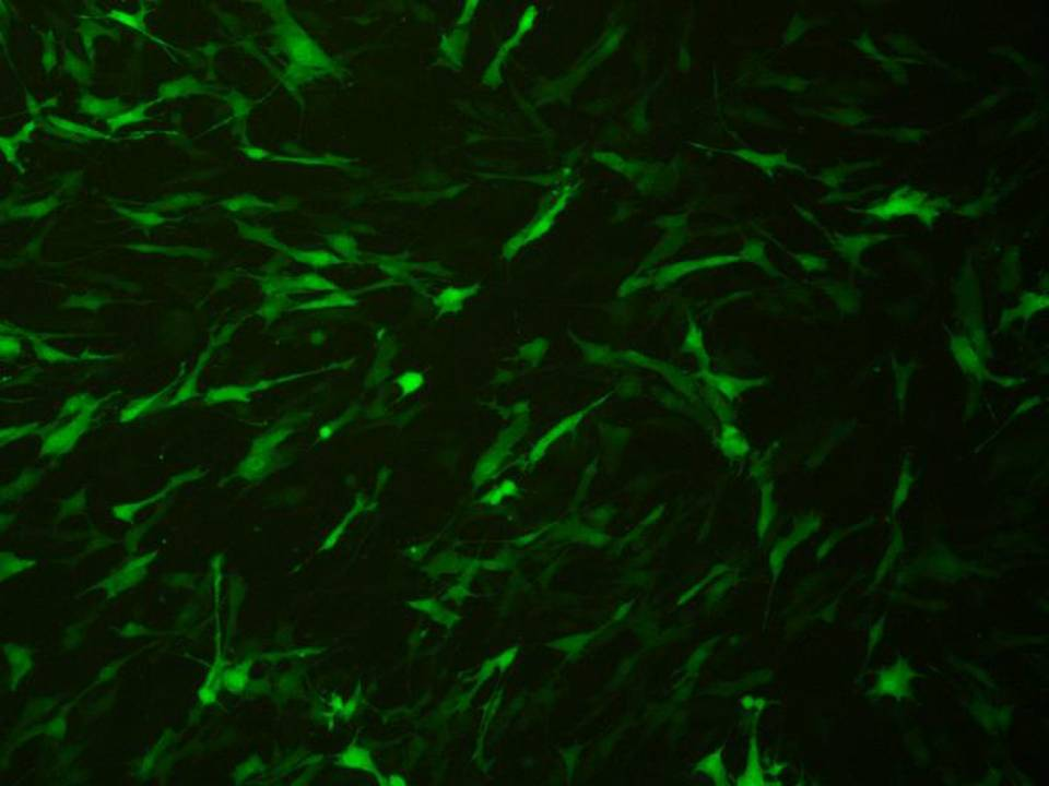 Primary - Human Mesenchymal Stem cells - Transfection Efficiency 75 per cent