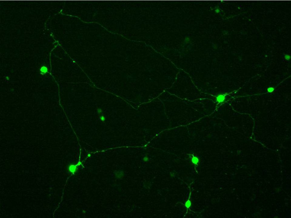 Primary Rat Neurons in Adherence - 48 hrs post EP - Transfection Efficiency 50 per cent