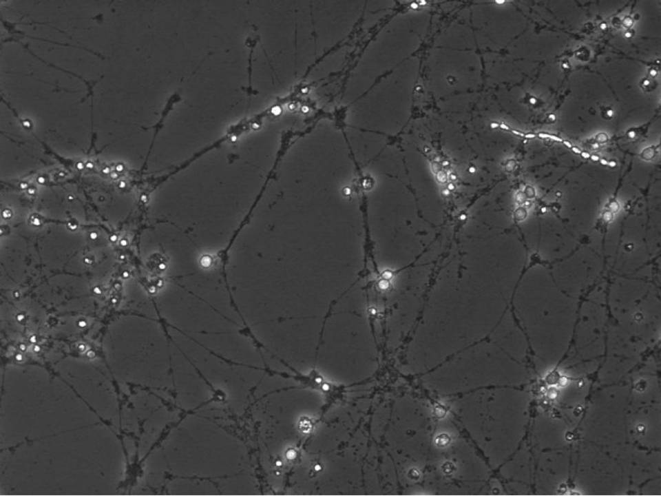 Primary Rat Neurons in Adherence - 48 hrs post EP - Viability 100 per cent x 2